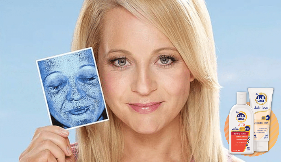 Carrie Bickmore Sunsense Campaign, against melanoma campaign